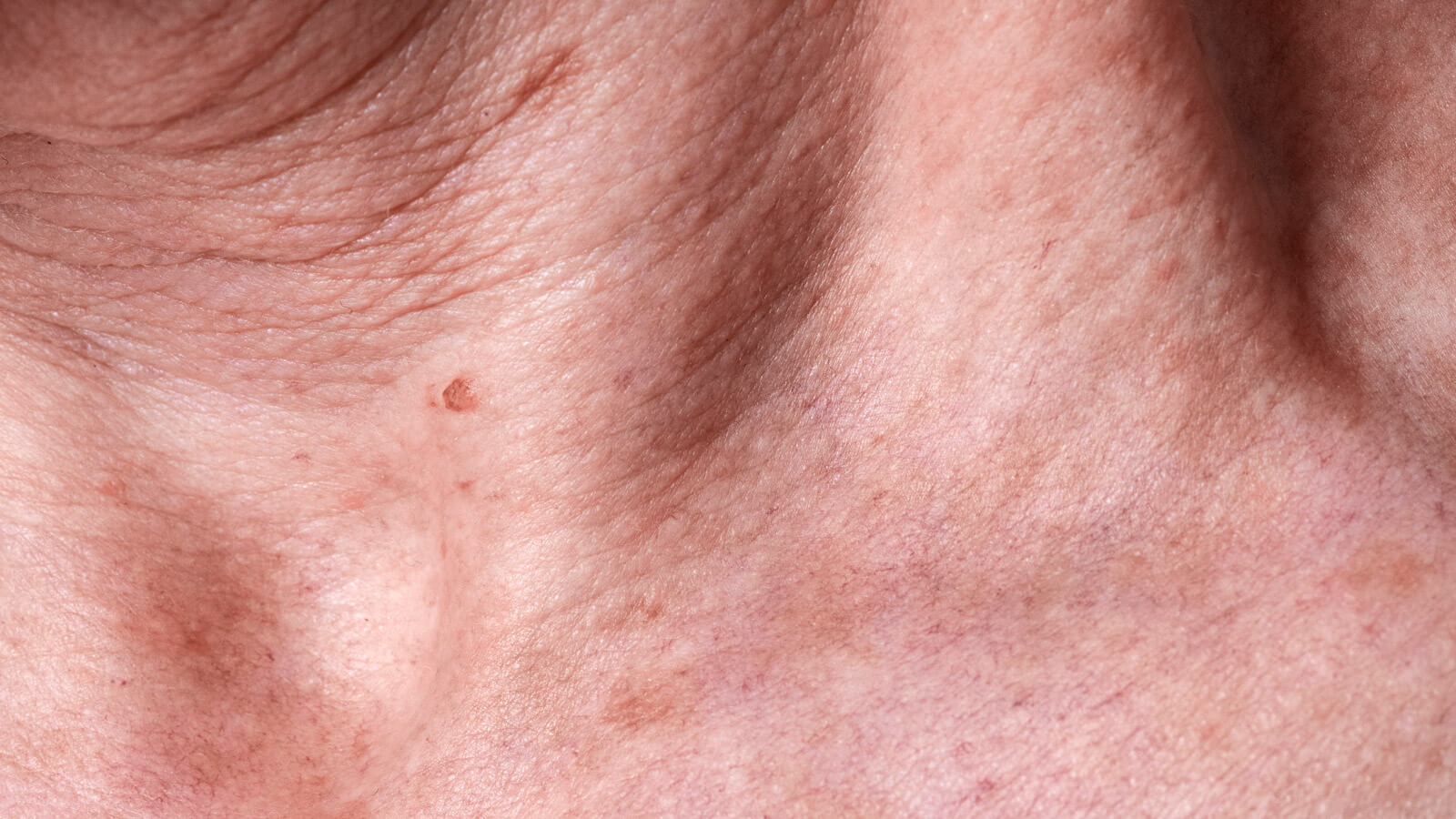 melasma en la piel