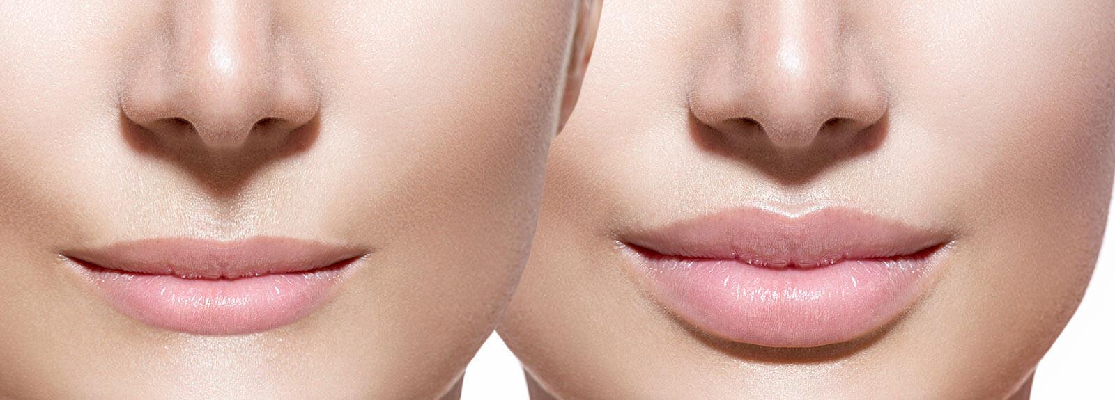 hedonai-promocion-relleno-labios-ejemplo
