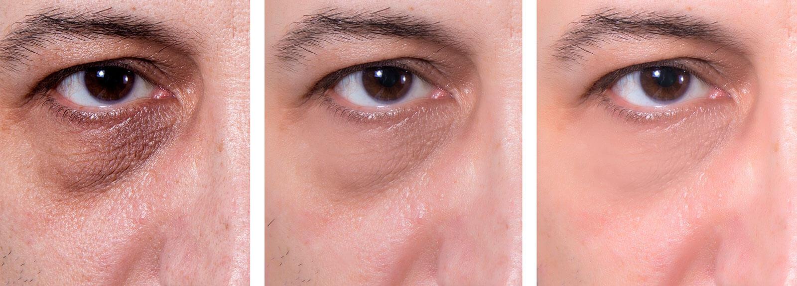 hedonai-promocion-despigmentacion-ojeras-ultimate-eye-ejemplo