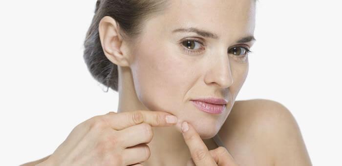 acne a los 40 años en mujeres