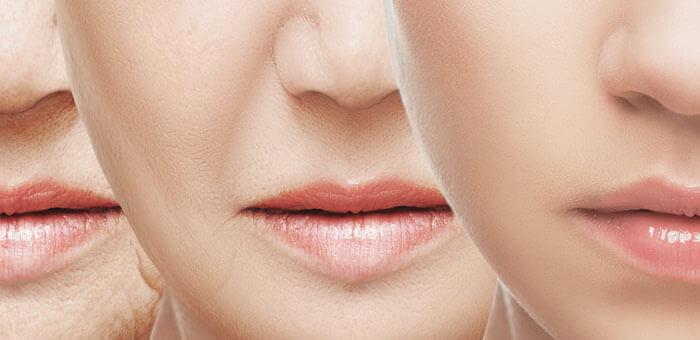 Toma nota de los procedimientos más vanguardistas y eficientes para difuminar este tipo de arrugas