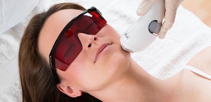 depilacion laser facial efecto paradojico