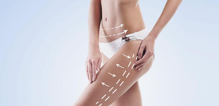 Existe una confusión generalizada entre liposucción y lipoescultura que queremos aclararte