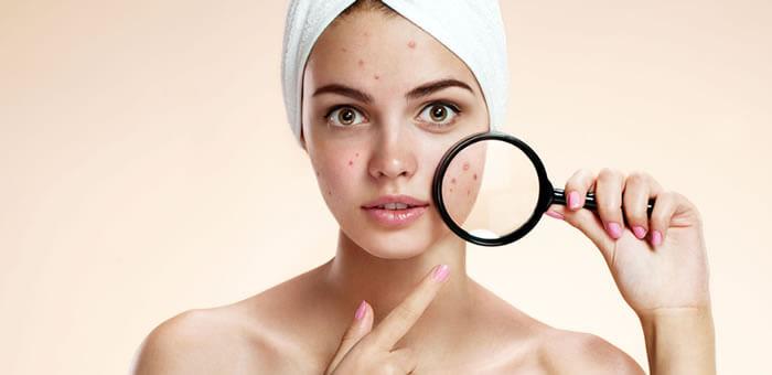 manchas acne