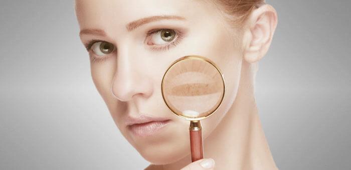 Acaba con las manchas de la piel del cuerpo y rostro. Toma nota con las recomendaciones que te damos
