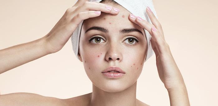 acido retinoico acne