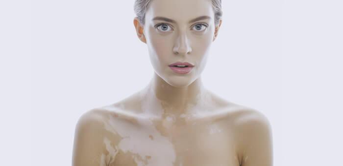 vitiligo y depilacion laser