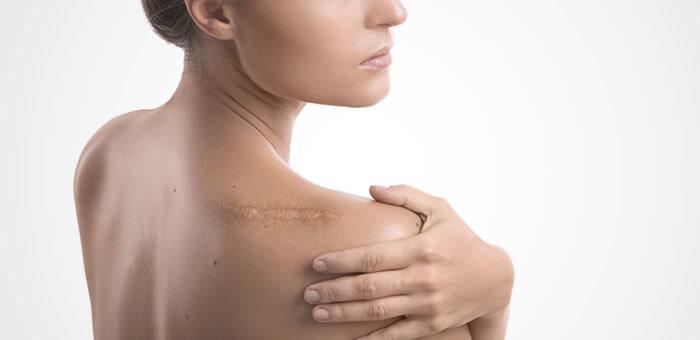 cuidados de cicatrices post operatorias