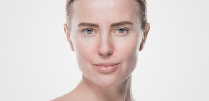 como tratar la dermatitis seborreica facial