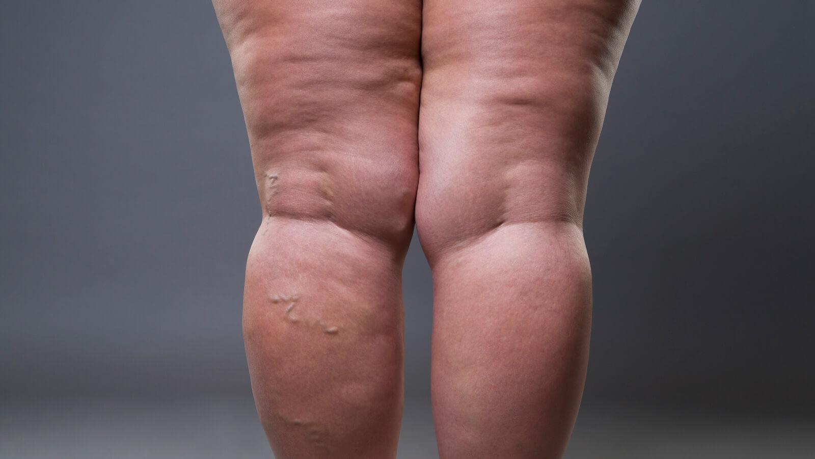 lipedema en las piernas