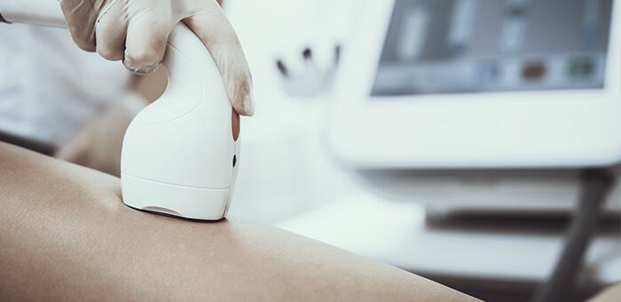 Hedonai - Pros y contras de la depilacion laser en la piel morena