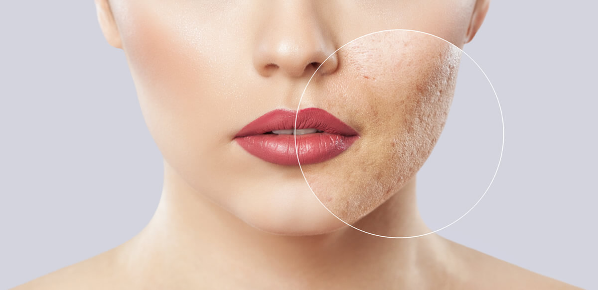 Crema para eliminar cicatrices de acne
