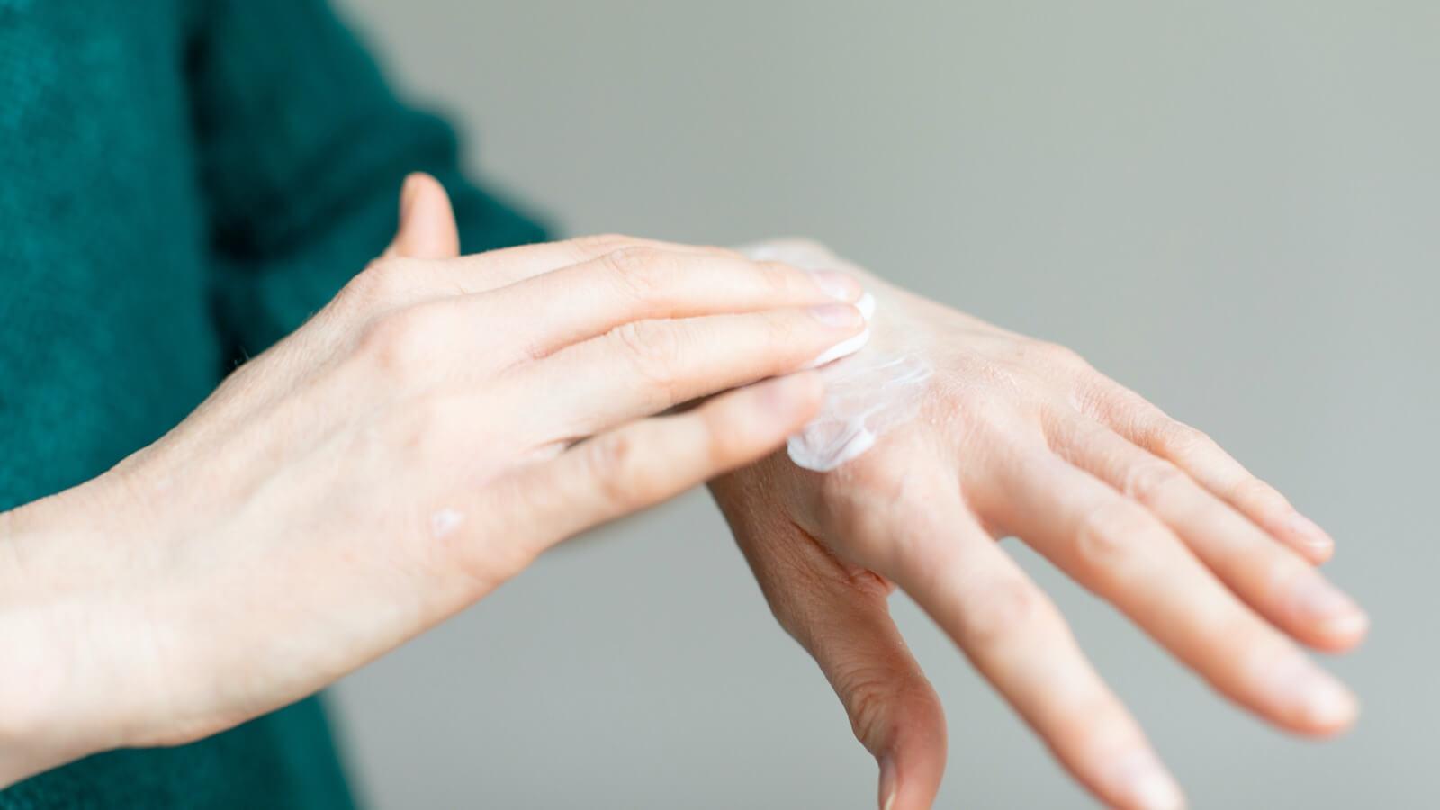 Síntomas y causas de la piel seca y escamosa
