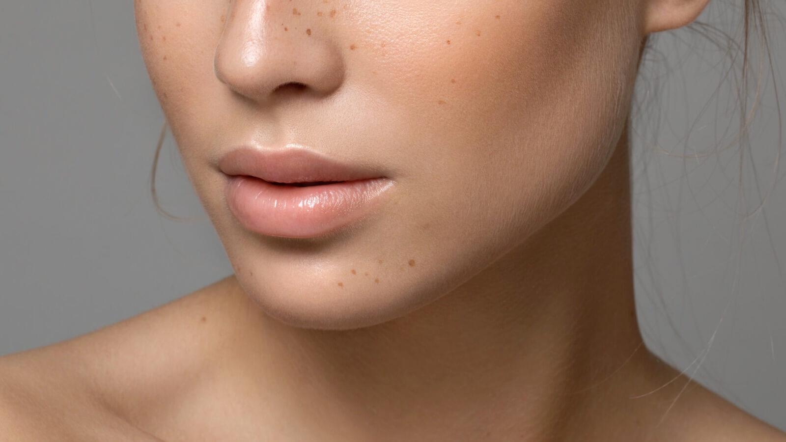 manchas en los labios