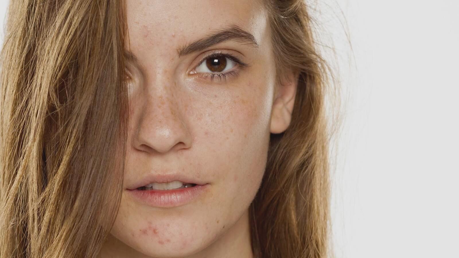 consecuencias del uso de la mascarilla para la piel