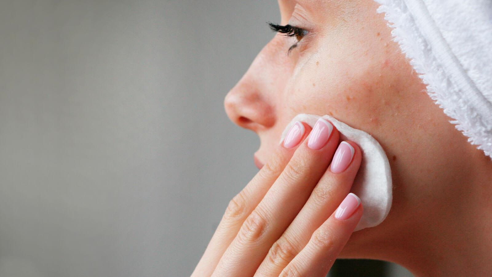 consejos para prevenir el acné